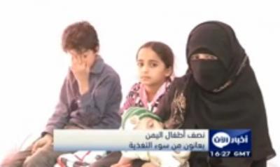نصف أطفال اليمن يعانون من سوء التغذية (
