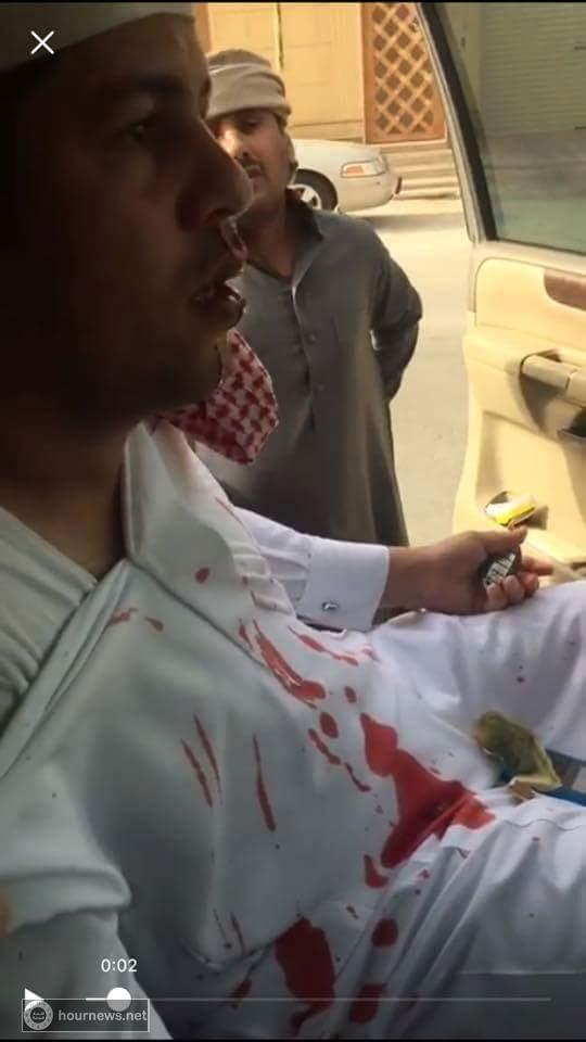 شاهد صور وفيديو: ردود افعال واسعة من اليمنيين والسعوديين على امير سعودي ضرب مغترب يمني حتى نزف دمه وسب امه الى قبرها