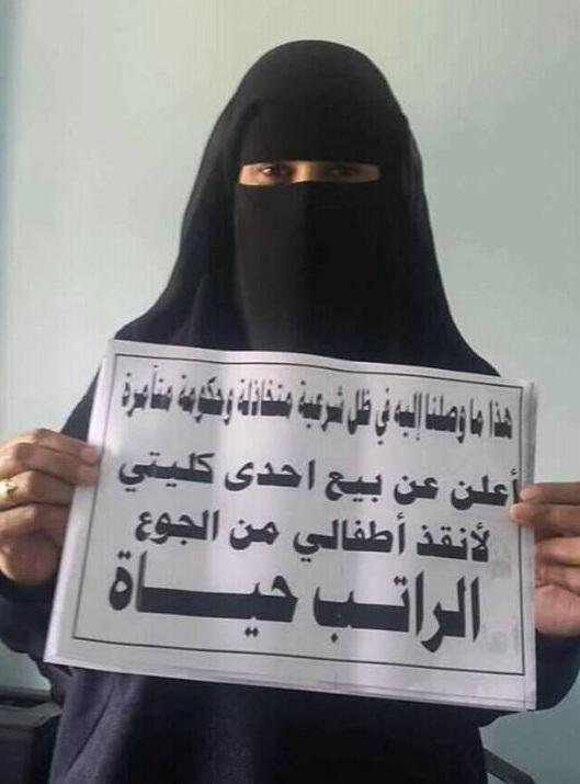 في صورة صادمة للشرعية: ثائرة تعز تعرض كليتها للبيع لإطعام أطفالها