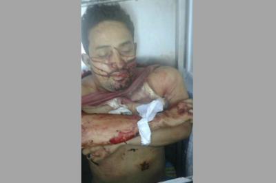 مسلّحون يتبعون الإمارات يغتالون مدير أمن يافع ويسحلون جثته داخل فندق بمدينة عدن (فيديو + صورة)