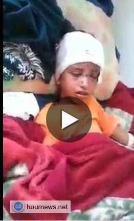 اليمن: شاهد بالفيديو أطفال ضحايا التفج